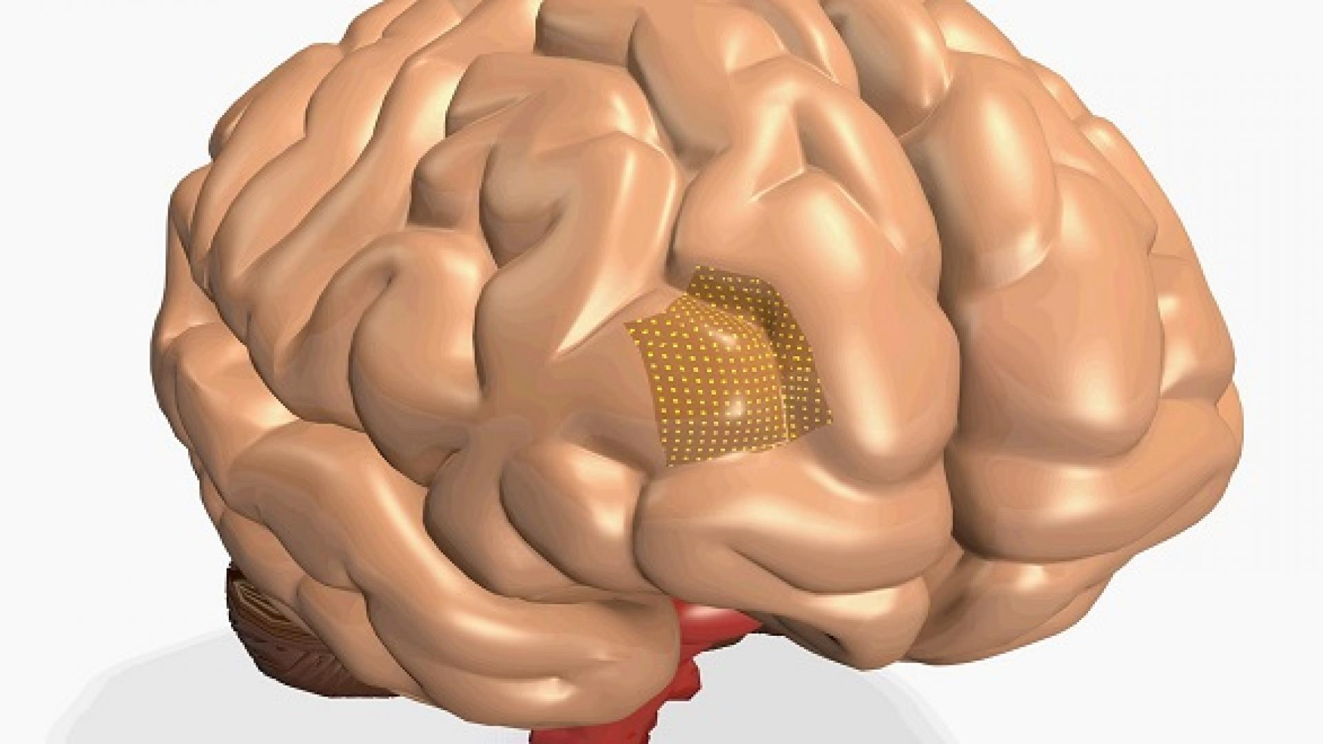 CEMSE EE Gentle Sensors For Diagnosing Brain Disorders